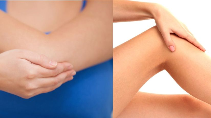Diy Lighten Elbows Knees And Neck Naturally Fast Glamrs
